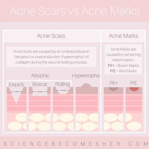 Types of Acne Scars vs Acne Marks