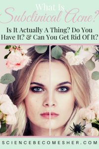Subclinical Acne - What Is It & How To Get Rid