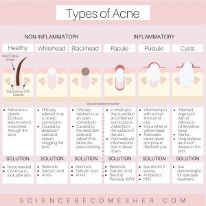 How to Get Rid of Forehead Acne - What Type